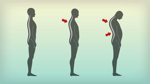 Therapeutic Pilates-based Exercise Progressions for Hyperkyphosis